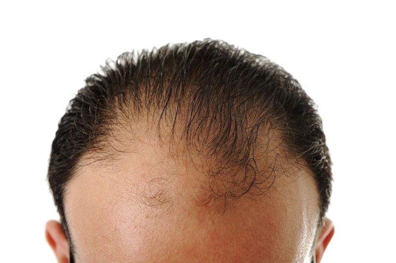 Vypadávanie vlasov - príčiny, príznaky, liečba