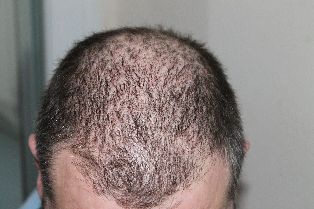 vypadávanie vlasov 7799c3e6a2a