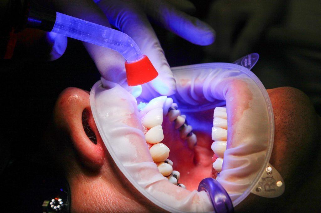 Zápach z úst a dentálna hygiena