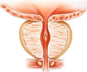 zväčšená prostata - benígna hyperplázia prostaty