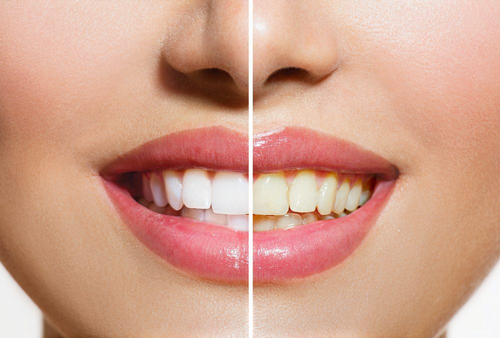 Curaprox Black is White bieliace účinky na zuby