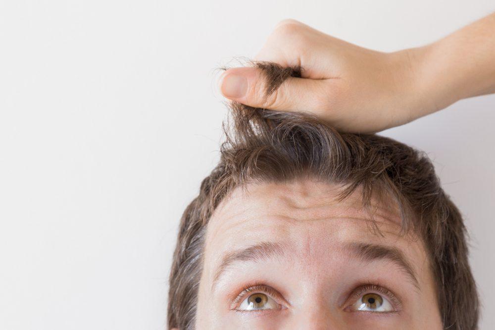 Pevnosť vlasov a vypadávanie u mužov