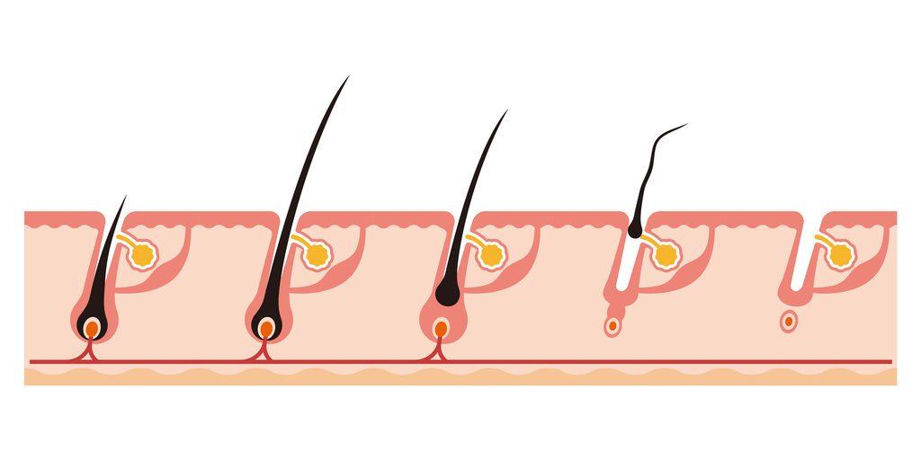 Proces vypadávania vlasov a jeho príčiny