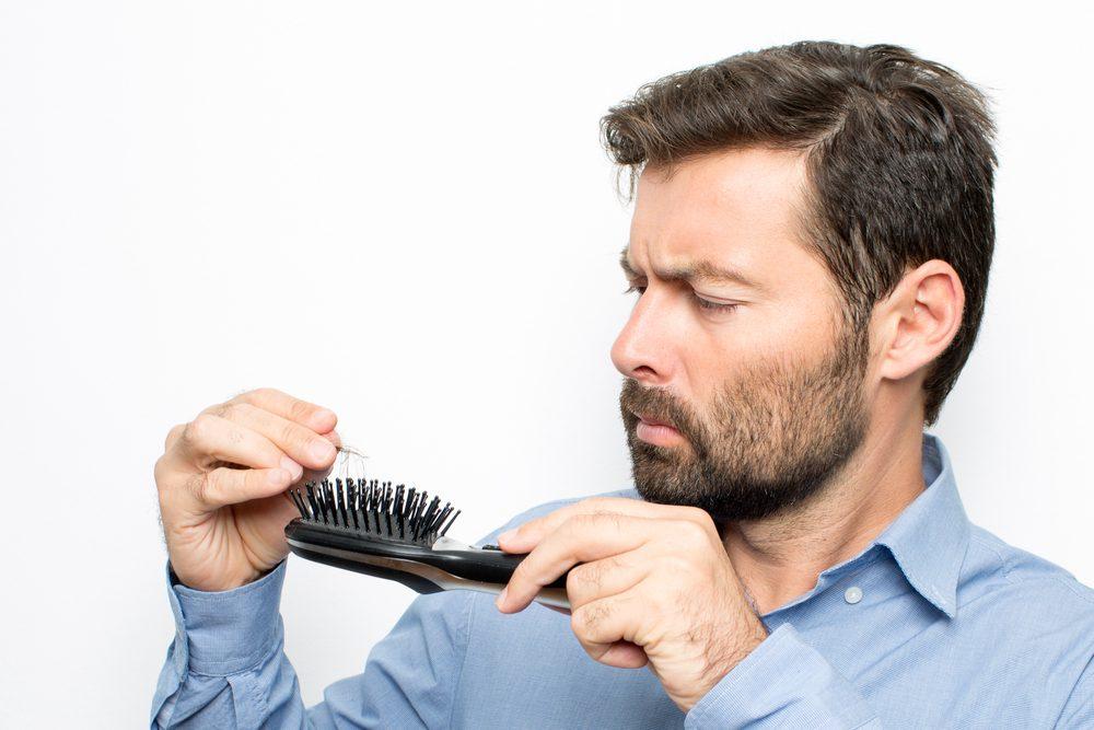 Prečo muži trpia vypadávaním vlasov