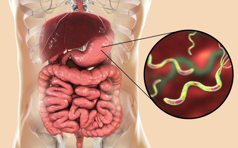 Helicobacter - baktérie kolonizujú žalúdok