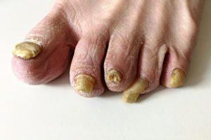 Onychomykotické nechty