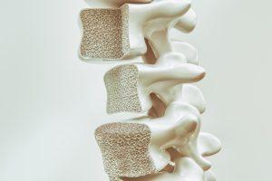 Nedostatok vitamínu K2 sa môže prejaviť vznikom osteoporózy