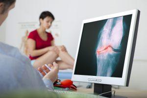 Príznaky gonartrózy