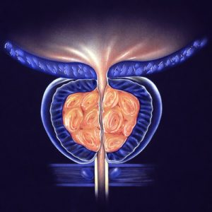 Zväčšená prostata BHP