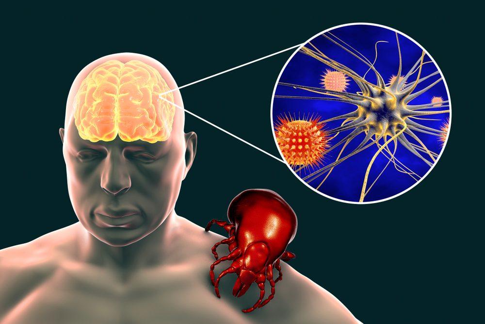 Kliešte sú pôvodcami mozgovej enscfalitídy