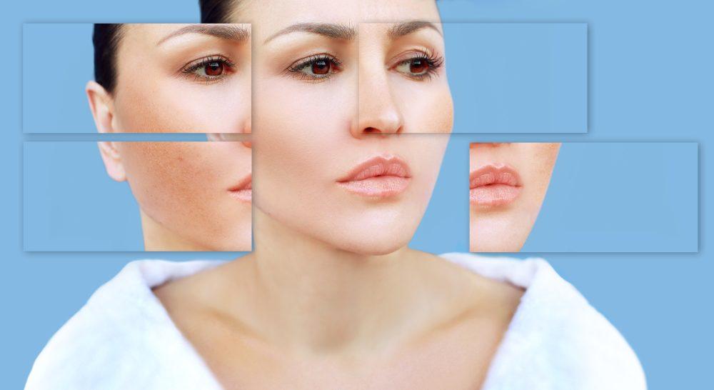 Redupetin krém na redukciu pigmentových škvŕn