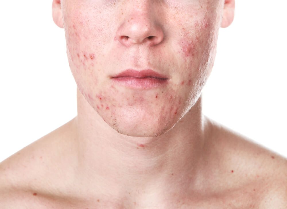 Akné na tvári chlapca