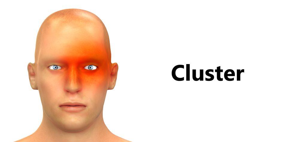 Klastrovú bolesť hlavy charakterizujú veľmi prudké bolesti