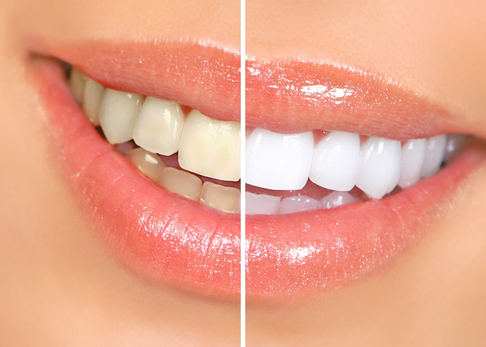 Zuby pred a po bielení