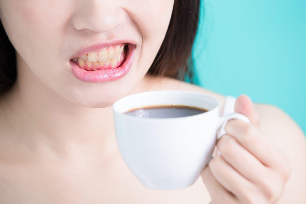 Káva nie je priateľkou žiarivých zubov