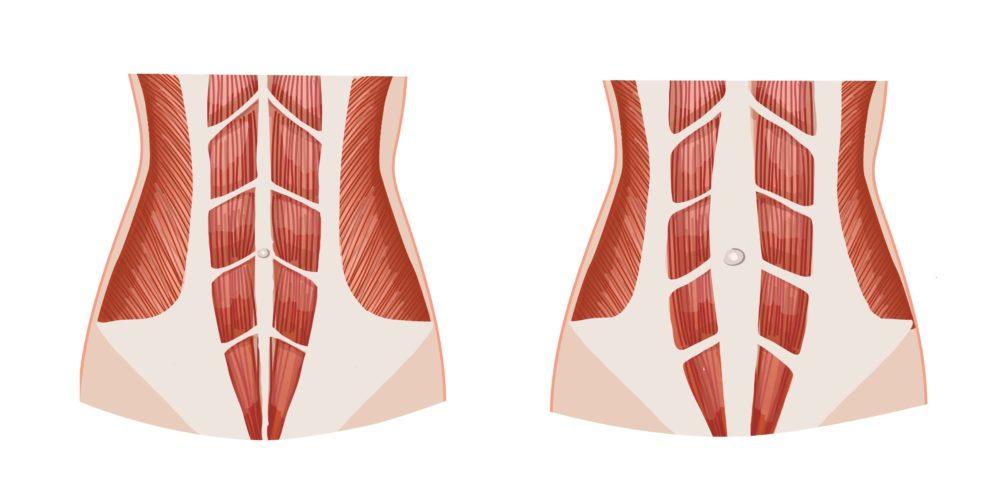 Normálne svaly brucha a diastáza brušných svalov