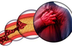 cholesterol usadený na stenách ciev znemožňuje prietok krvi do srdca