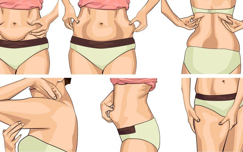 ilustrácia problematických oblastí ukladania tuku